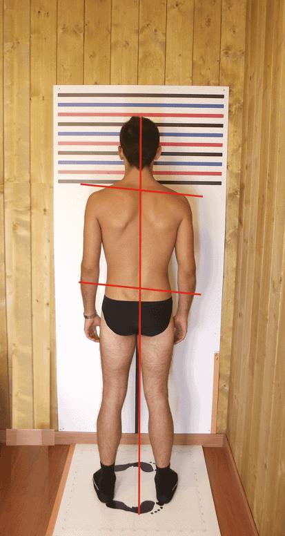 valutazione della postura
