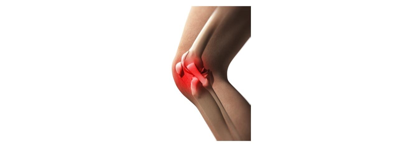Dolore al ginocchio - L'Altra Riabilitazione