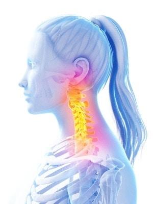 Sintomi, cause e caratteristiche del disturbo cervicale. Video guida alla cervicale parte 1