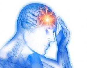 Emicrania acuta