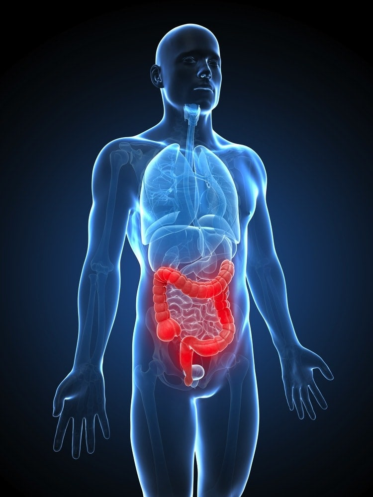 colon irritabile stress