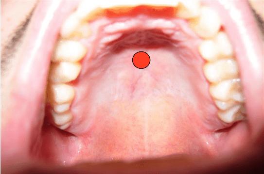 Il dolore a osteochondrosis di reparto cervicale che uccidere il dolore in