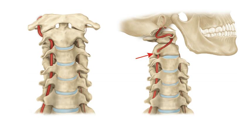 Tratto cervicale: arteria vertebrale