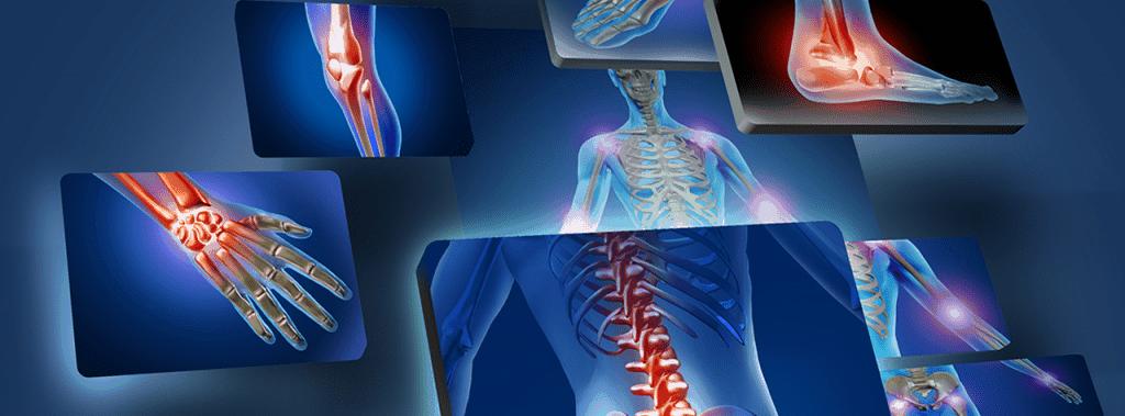 Spondiloartrosi, ernie del disco e Discopatie: riscontri radiologici