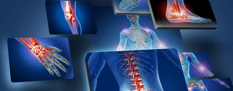 dolore-alle-articolazioni