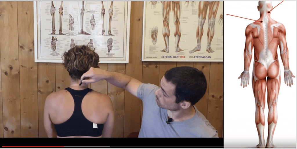 dacă articulațiile de pe picioare doare ce vitamine pentru durerea în articulațiile musculare