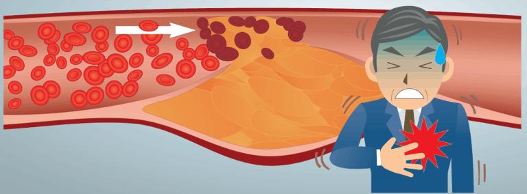 buona combinazione di cibi fluidificanti del sangue