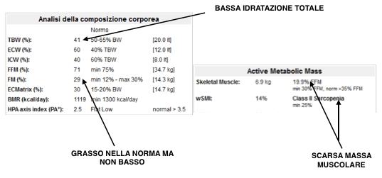 BIA lorenza