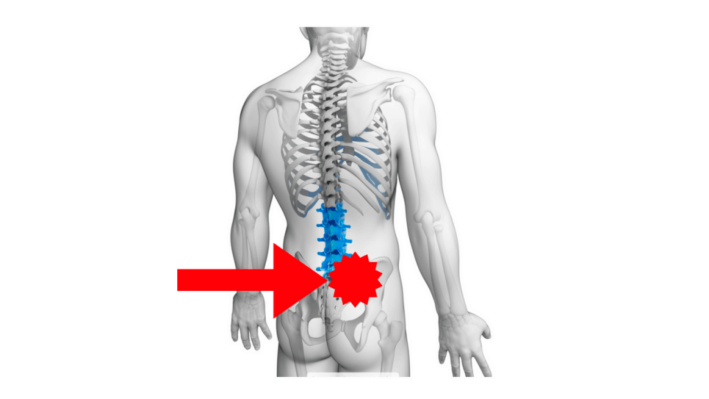 dolore-osso-sacro