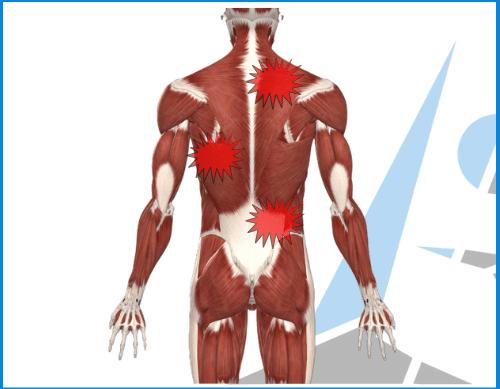 Dolori muscolari diffusi e metabolismo: l'importanza di un..