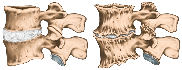 vertebre