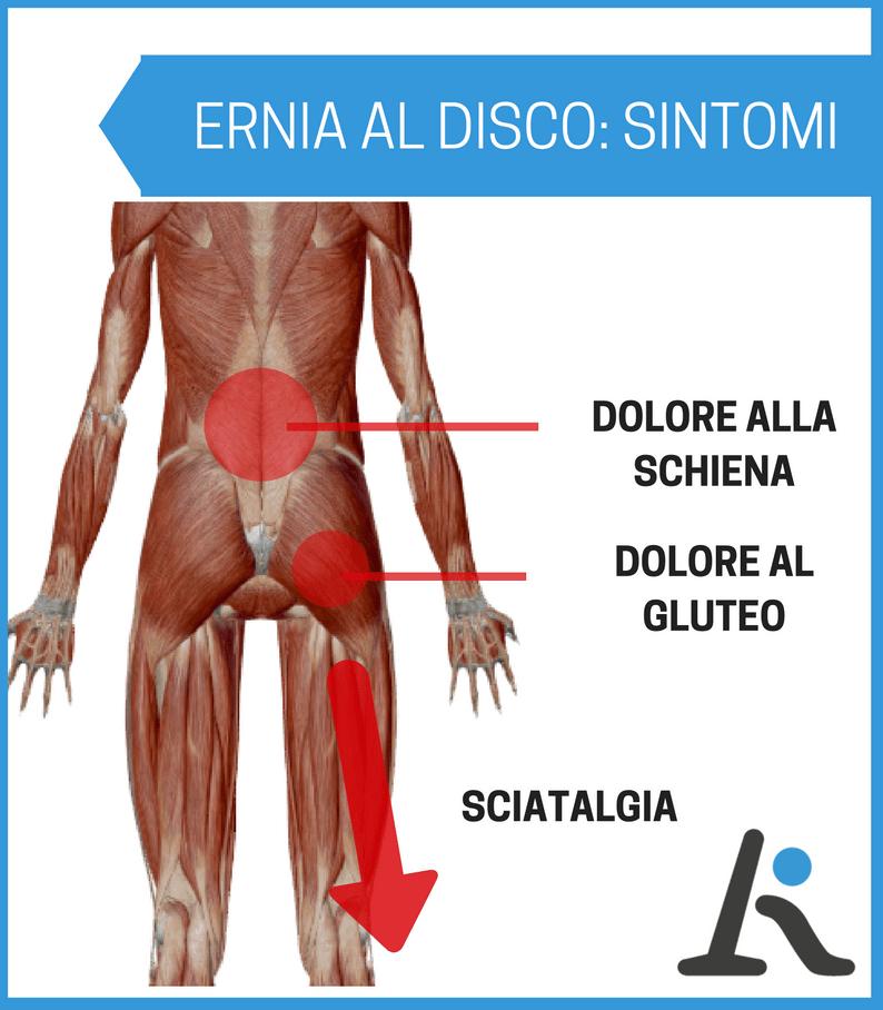 infografica con sintomi di ernia al disco
