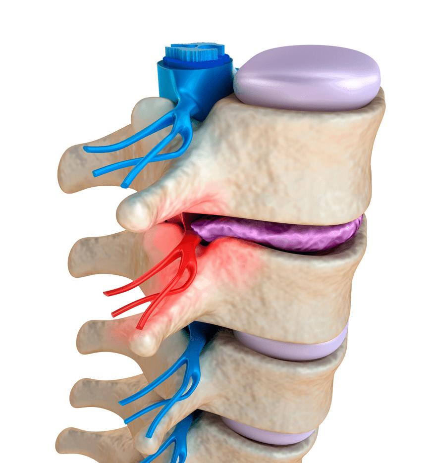 Sciatica o sciatalgia: quel nervo infiammato che fa venire i nervi