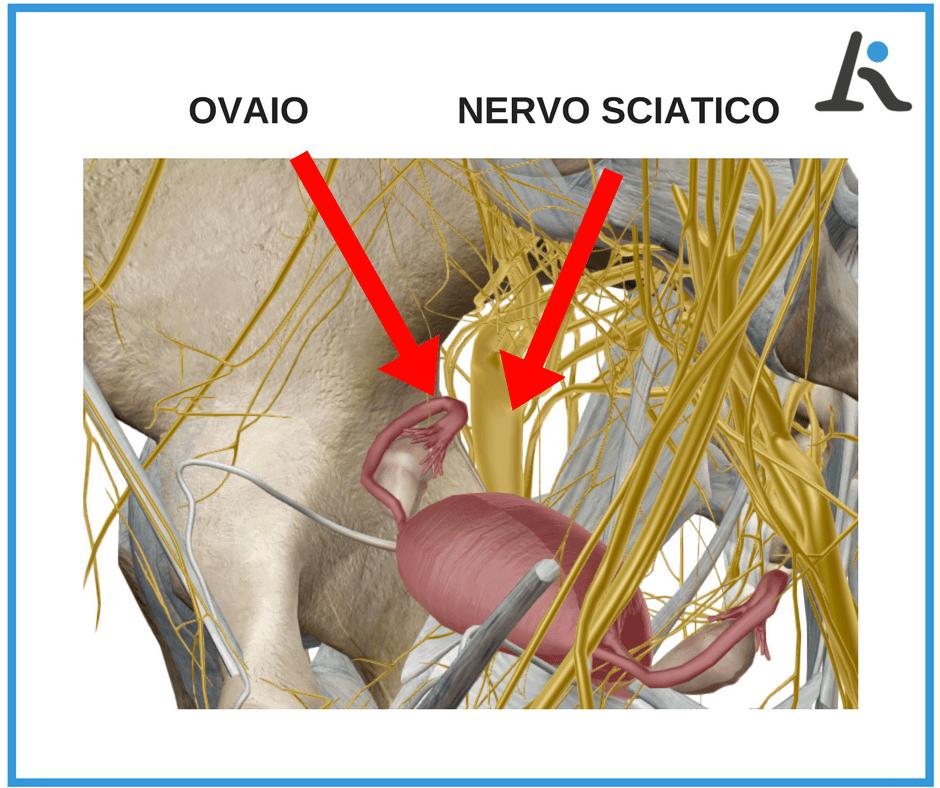 come guarire nervo sciatico