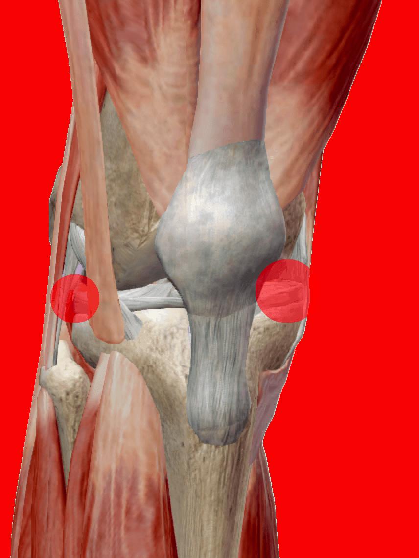 Artrosi al ginocchio: sintomi, cause e rimedi