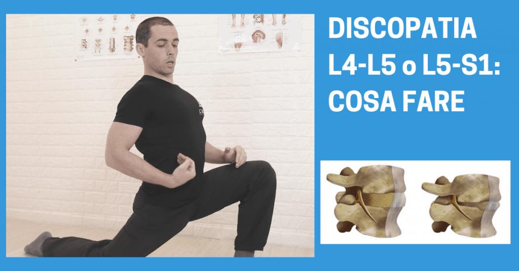 Discopatia L5-S1 (o protrusione discale L5-S1): sintomi ed esercizi