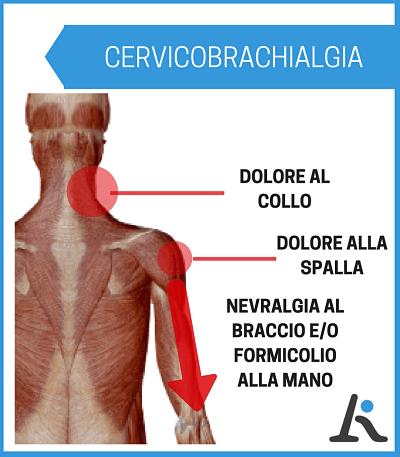 descrizione sintomi cervicobrachialgia