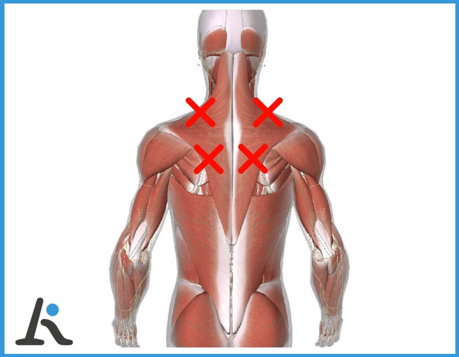 grafico sulle aree di dolore