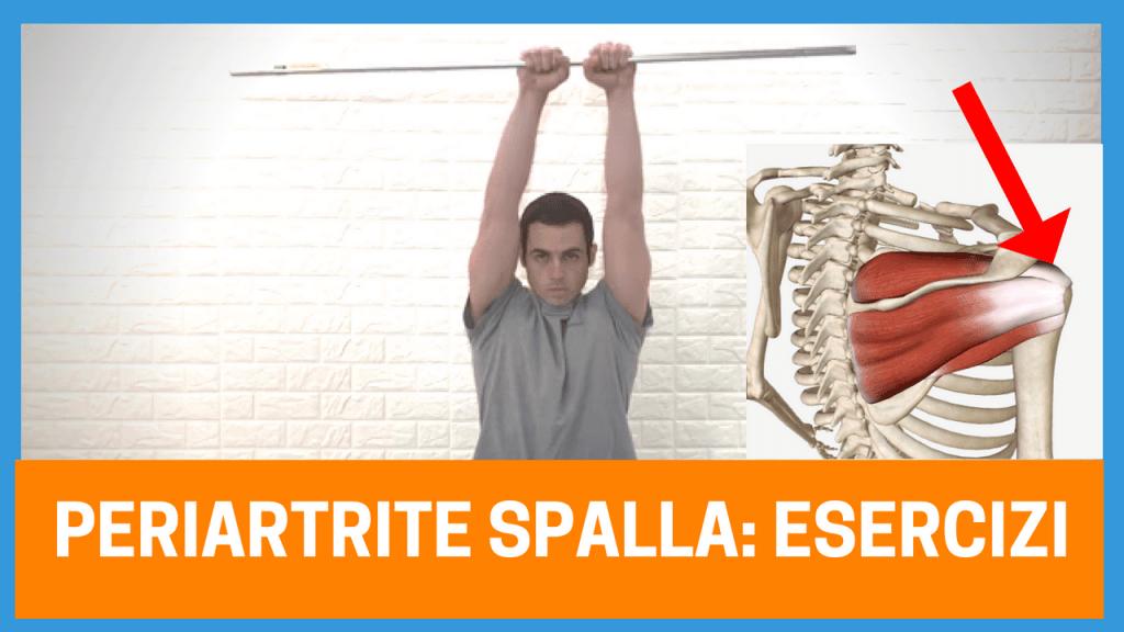 Dolore alla spalla da periartrite: consigli ed esercizi (VIDEO ARTICOLO)