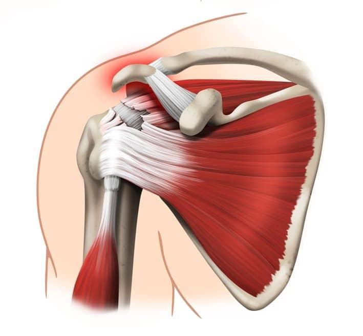 Cerchiamo di capire come mai i tuoi tendini della spalla siano diventati  problematici  in questo modo 69a026208613