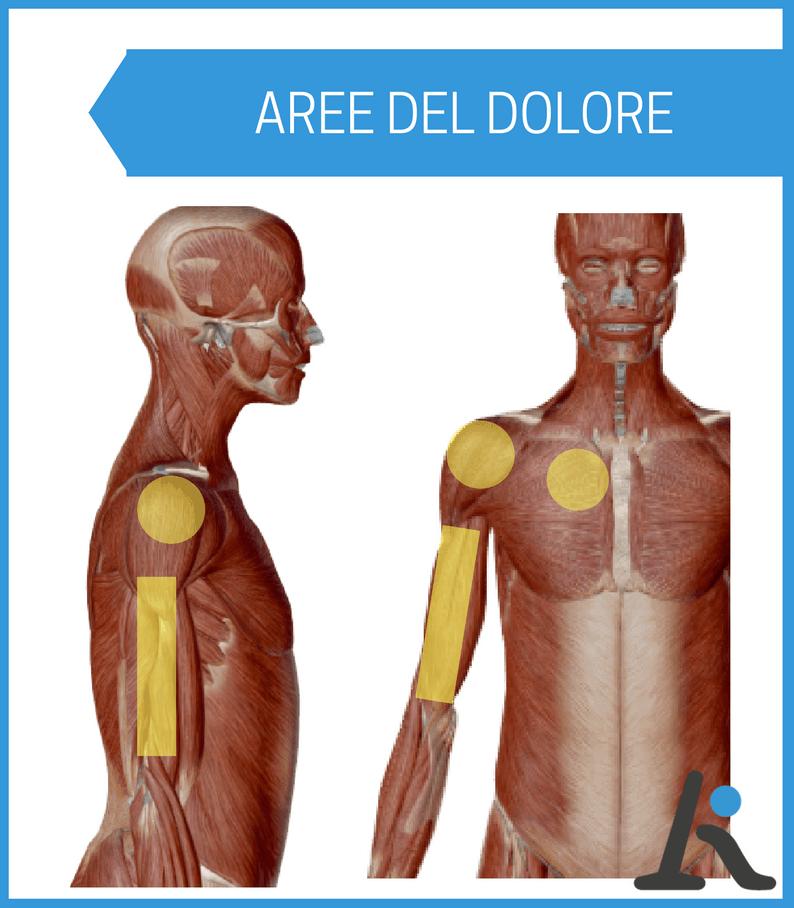 Dolore alla spalla: le 5 patologie più comuni