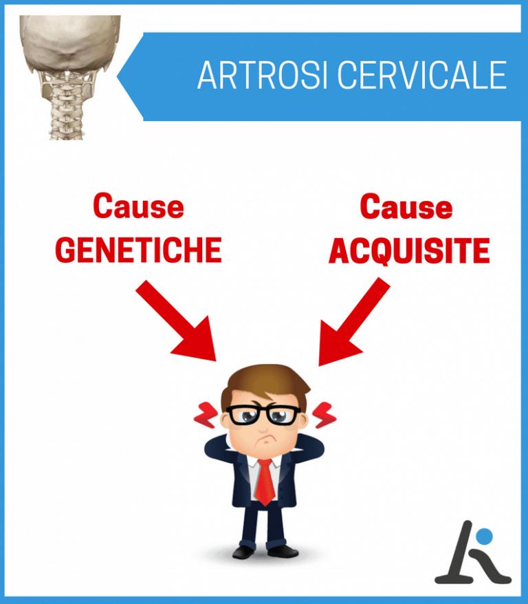 Artrosi cervicale: cause genetiche e cause acquisite