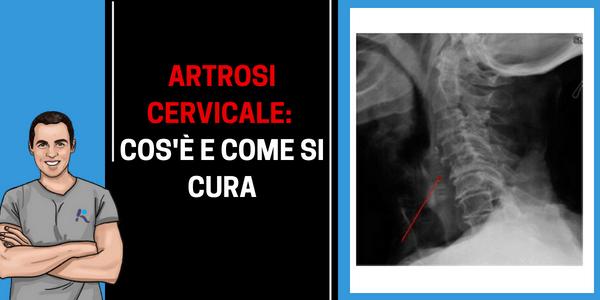 Cos'è l'artrosi cervicale (uncoartrosi o spondilouncoartrosi), che sintomi porta e come si cura.