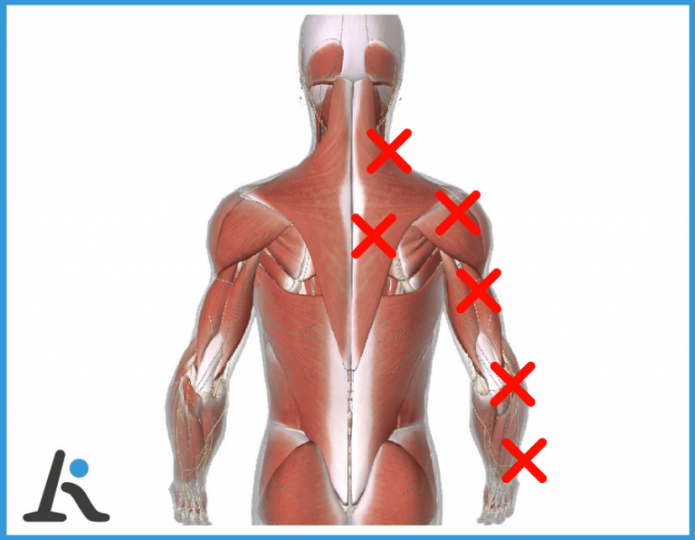 Ernia cervicale: dolore al braccio e alle scapole