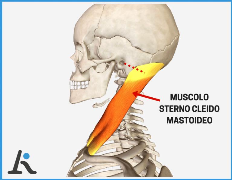 Acufeni da cervicale e muscolo sternocleidomastoideo