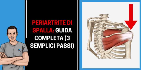 Guida completa alla periartrite di spalla