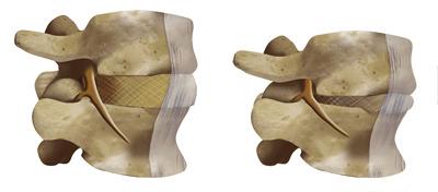compressione del disco intervertebrale