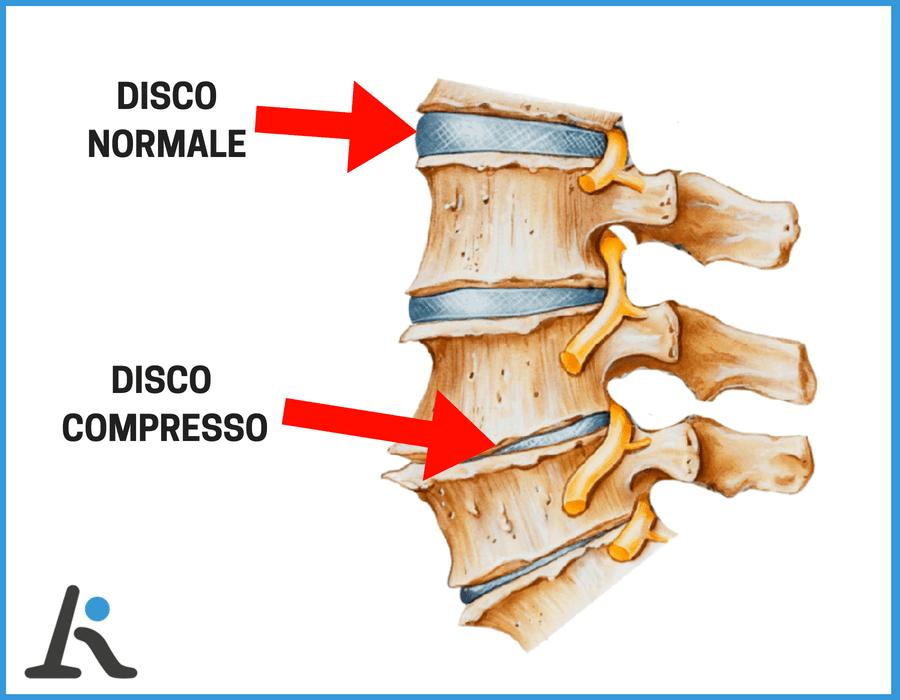 Riduzione del volume del disco vertebrale