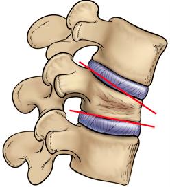 vertebra compressa causa frattura