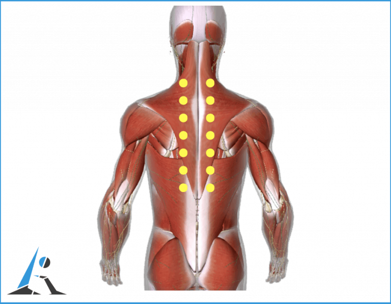 Intestino irritato e mal di schiena, rimedi contro il dolore