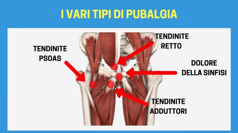 Sport: quando le articolazioni si infiammano