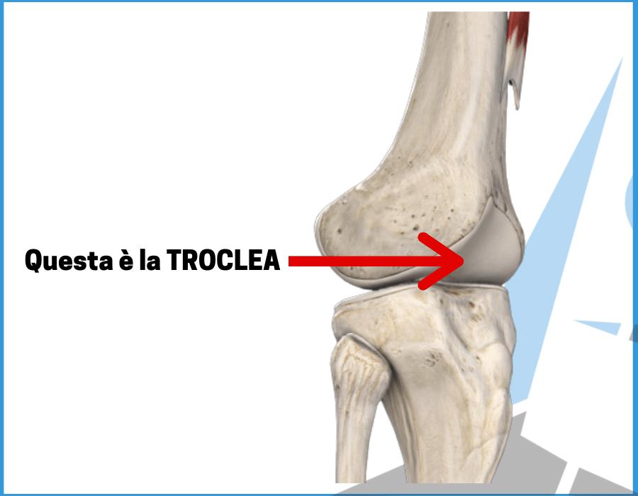 Sindrome femoro rotulea: cos'è e cosa fare per il dolore al ginocchio più comune